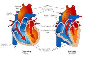 haperende hartklep