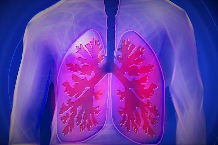 COPD-longen-bovenlichaam